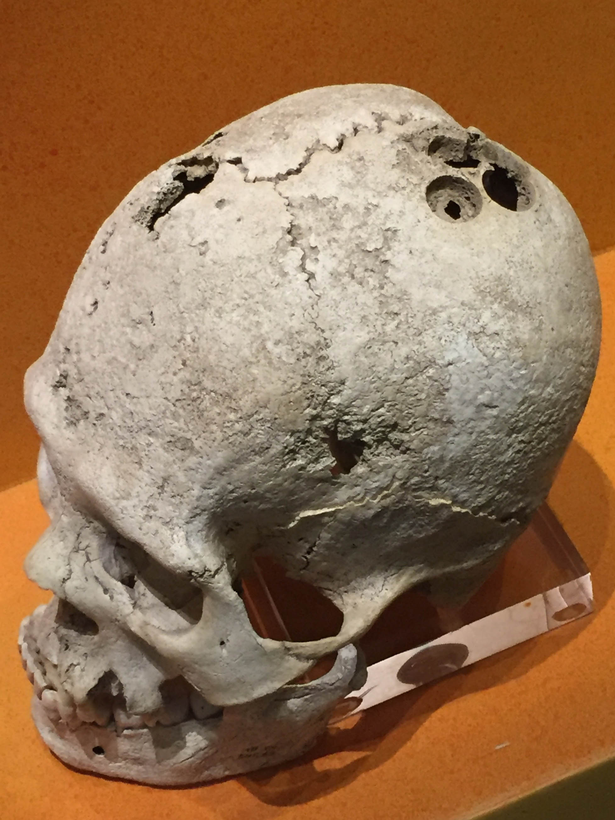 Zapotecs were believed to be highly skilled in many areas, including brain surgery. Apparently this person needed a lot of work.